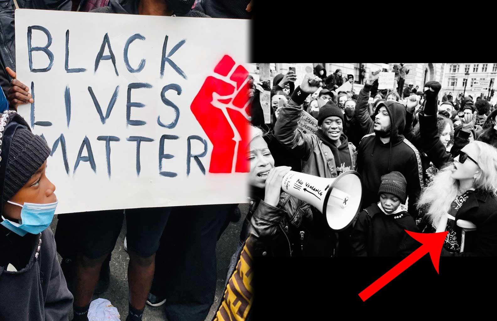 शाबाश! बैसाखियों के सहारे Black Lives Matter को सहारा देने पहुंची मैडोना